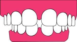 Zahnfleischrückgang nach Zahnentfernung