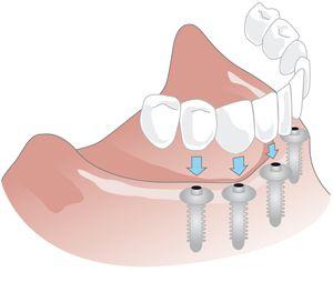 Ersatz ganzer Zahnreifhen